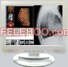 15inch Medical LCD Display Monitors White color for Dental clini