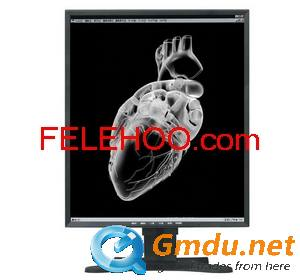 21.3inch 5MP Monochrome grayscale medical display lcd monitor