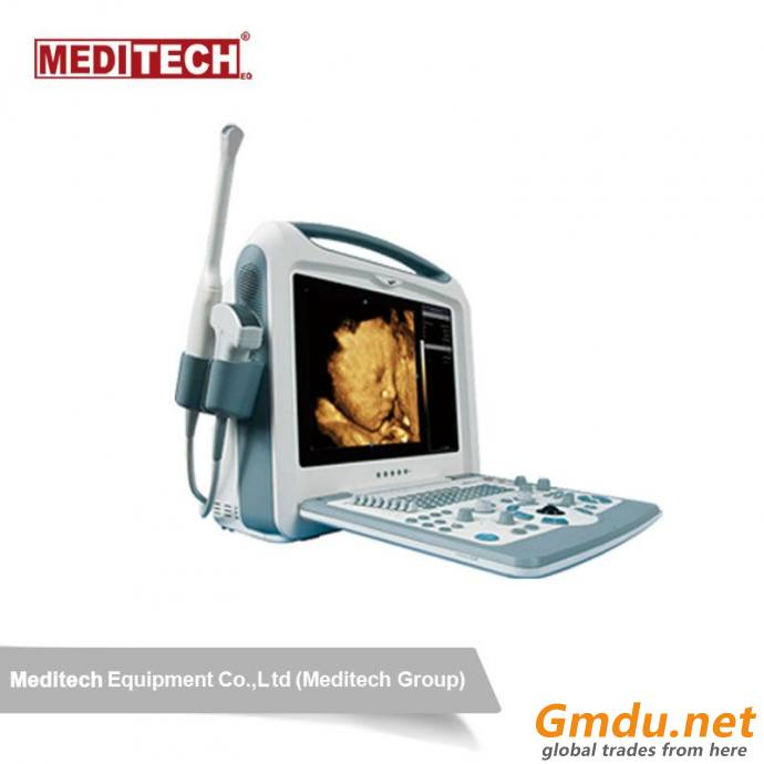 Color Portable Ultrasound Scanner S8I for Pregnancy with 4 USB and 2 Probe